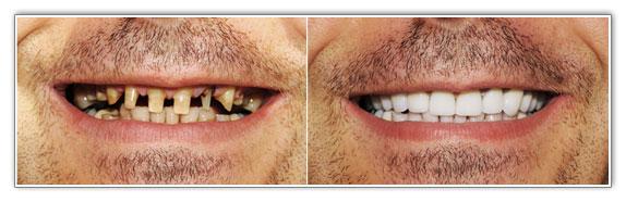 Periodontal Diseases, Gingivitis, Dentist Brampton | Dr. Sonia Sharma